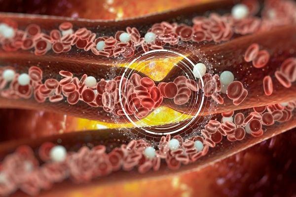 фракции холестерина