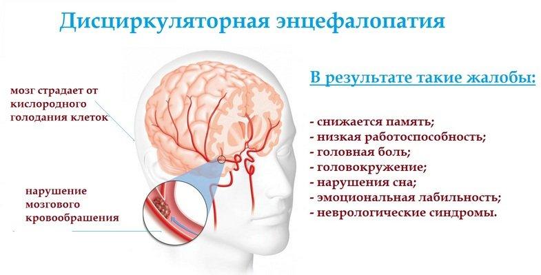 Особенности дисциркуляторной энцефалопатии