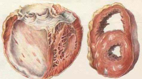 Диффузный кардиосклероз