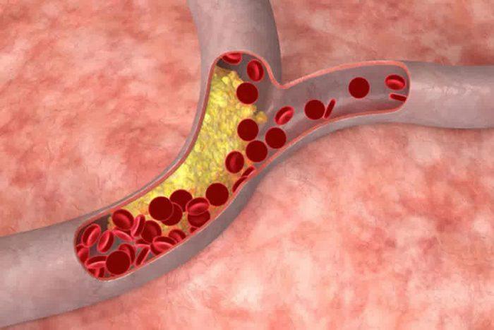 повышение концентрации холестерина
