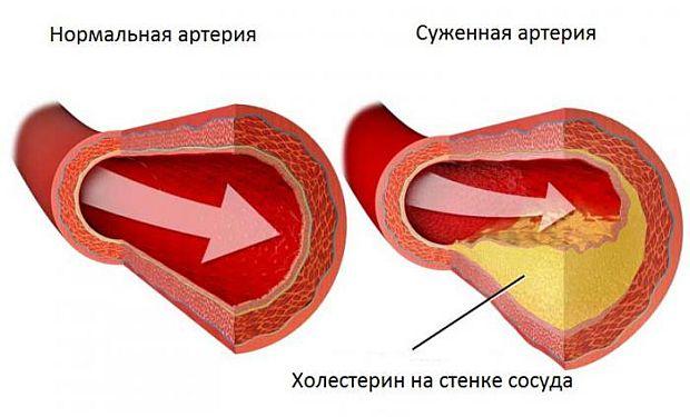 Нередко диагностируют атеросклероз в мужском организме после 40-летия